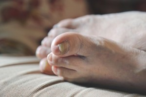 Thick toenails can be caused by fungus, skin conditions -- even injuries. Clipping them at home can lead to painful ingrown toenails, so check with your doctor before you break out the clippers.